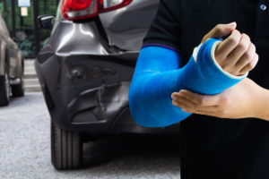 Dislocated Joints Caused by Motor Vehicle Accidents
